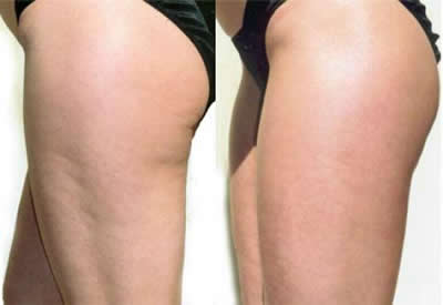 body_sculpting3_cellutlite